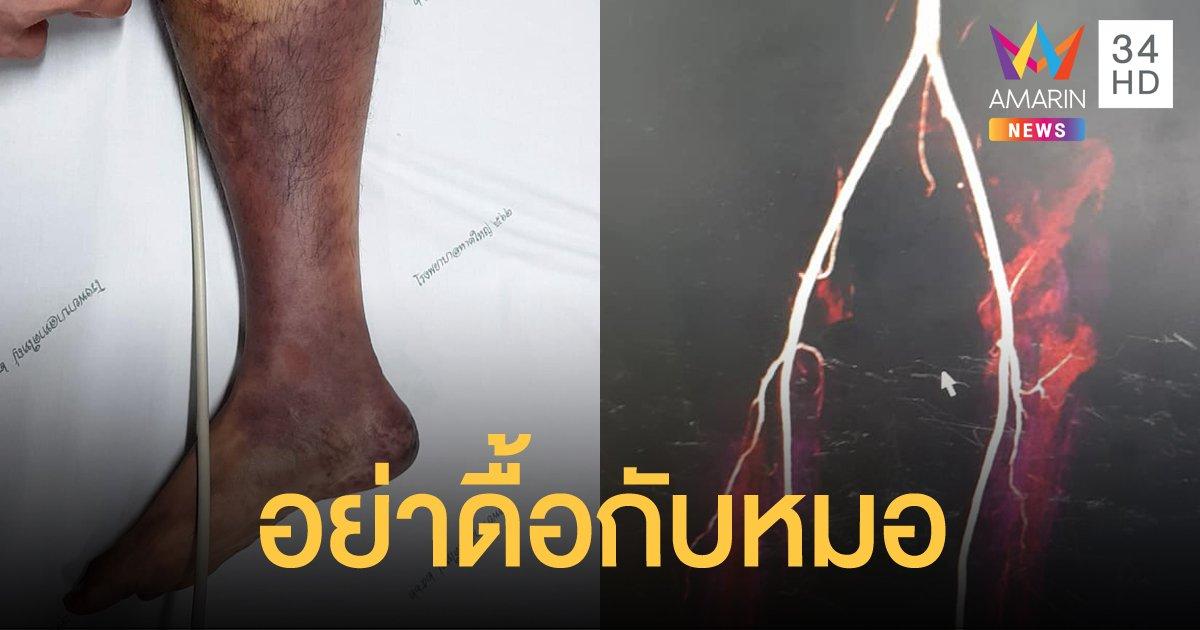 หมอโพสต์เตือน คนไข้ไม่ยอมผ่าตัด แถมอาละวาด สุดท้ายต้องเสียขาไปหนึ่งข้าง