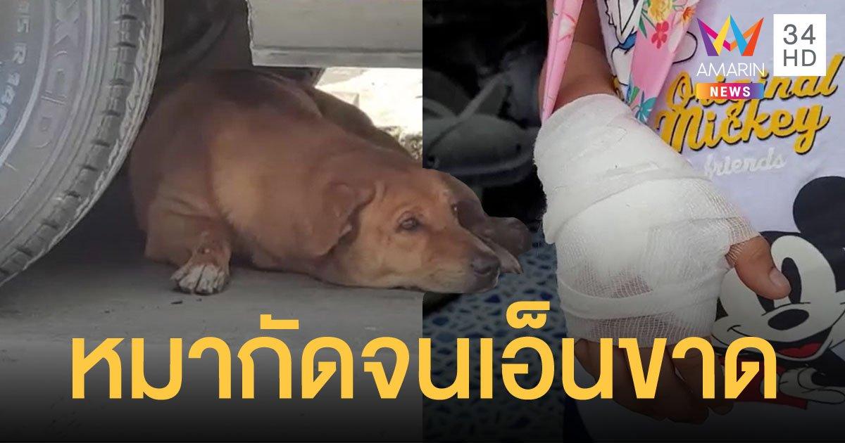 เด็กชายวัย 7 ขวบ ถูกสุนัขจรจัดบุกเข้าไปกัดข้อมือจนเอ็นนิ้วขาดถึงในบ้าน