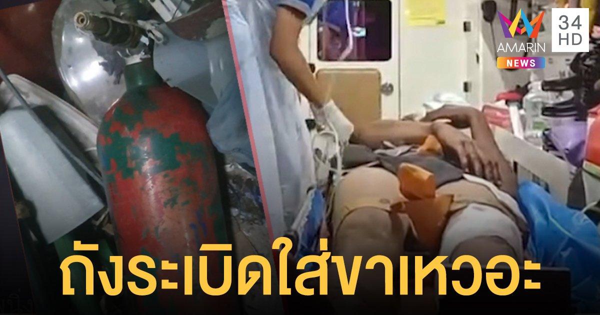 อุทาหรณ์หนุ่มอัดลมใส่ถังเกินลิมิต ระเบิดตูมใส่ขาเหวอะ!
