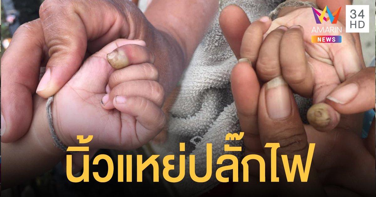 อุทาหรณ์! เด็ก 7 เดือนซนนิ้วแหย่ปลั๊กถูกไฟช็อต หมอเผยอาจต้องตัดนิ้ว