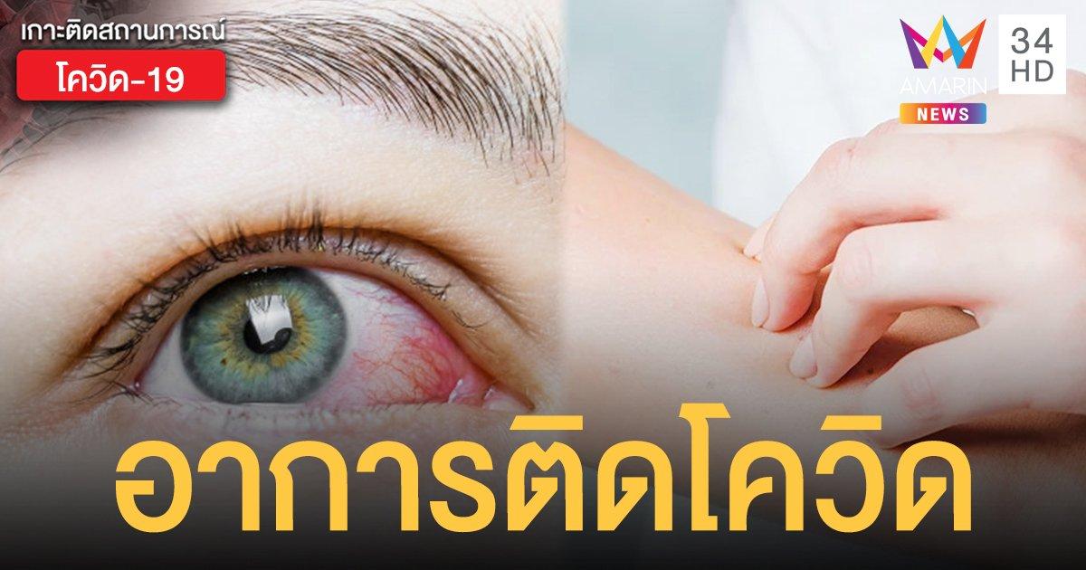 อาการติดโควิด ล่าสุด พบเกี่ยวกับ ดวงตา - ผิวหนัง ไม่มีไข้