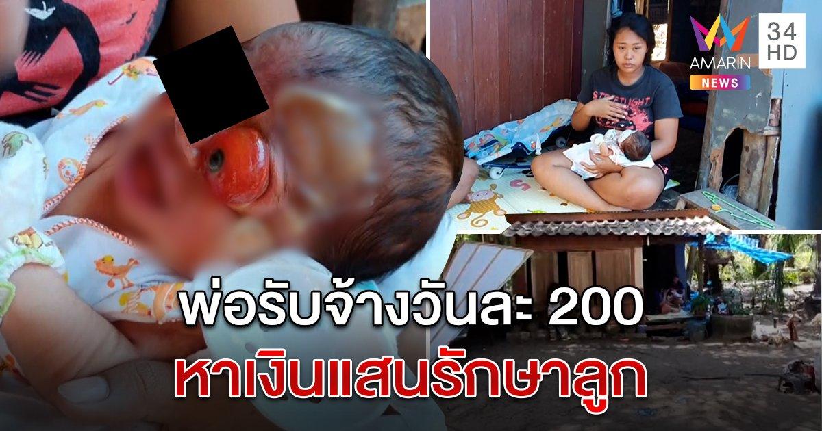 สุดสงสาร! วอนช่วยเด็กป่วยประหลาด ตาหลุดนอกเบ้า-ก้น 2 รู-จมูกข้างเดียว เพิ่งคลอดได้ 5 วัน